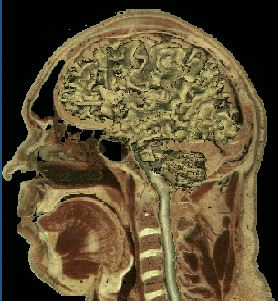 visible man brain section