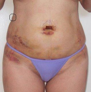 Liposuction In South Africa Lumps