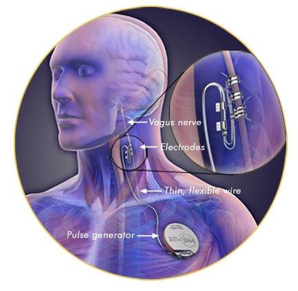 vagus nerve stimulation epilepsy pdf