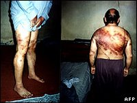 Allegations of severe torture have regularly emerged from Iraq