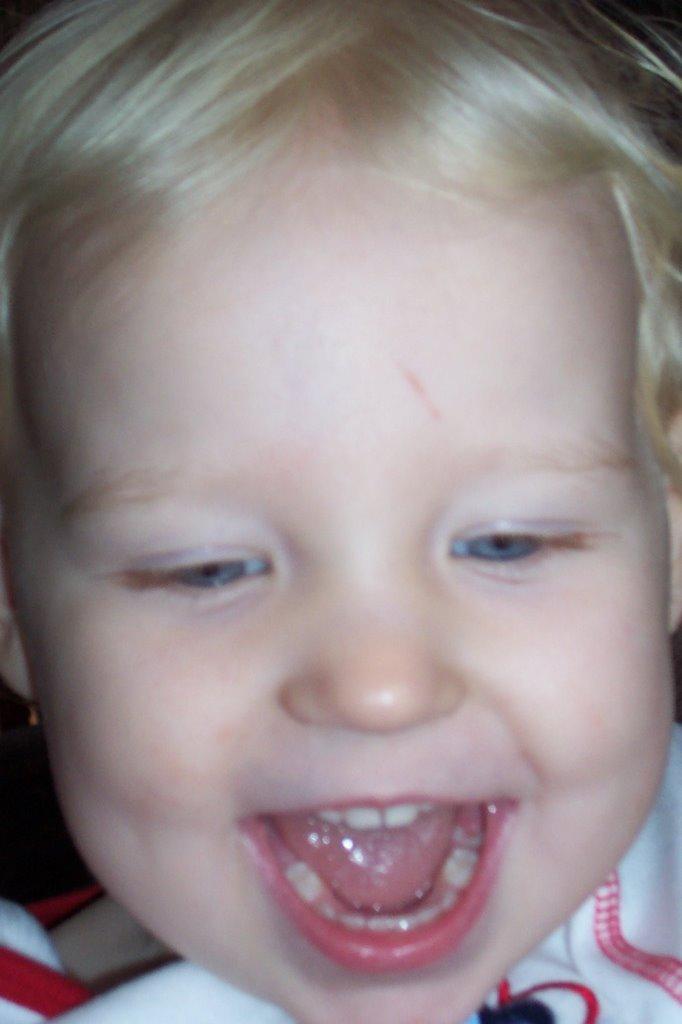 2 year old molars... already!