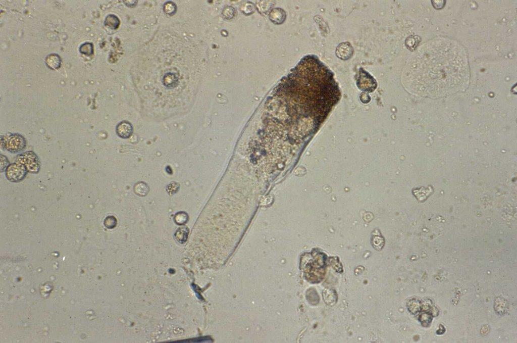 Leucocitos no exame de urina
