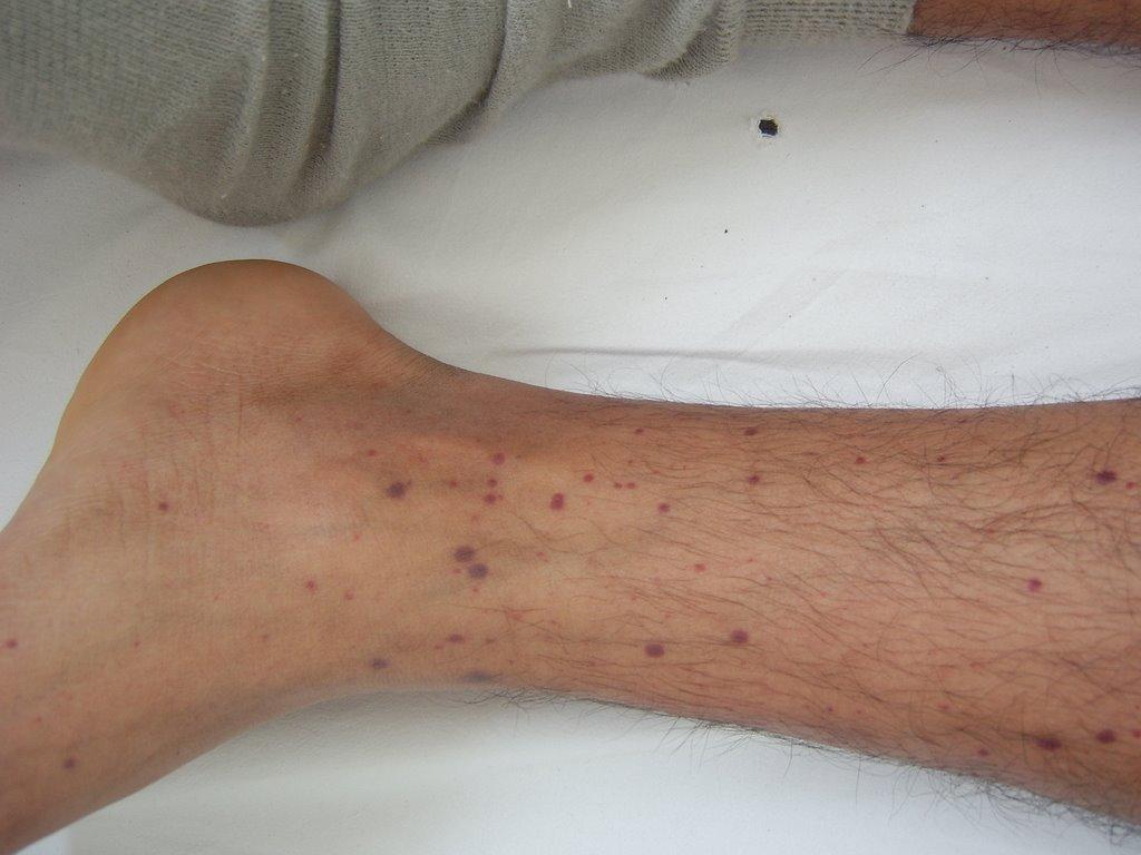 petequias y dolor en las piernas