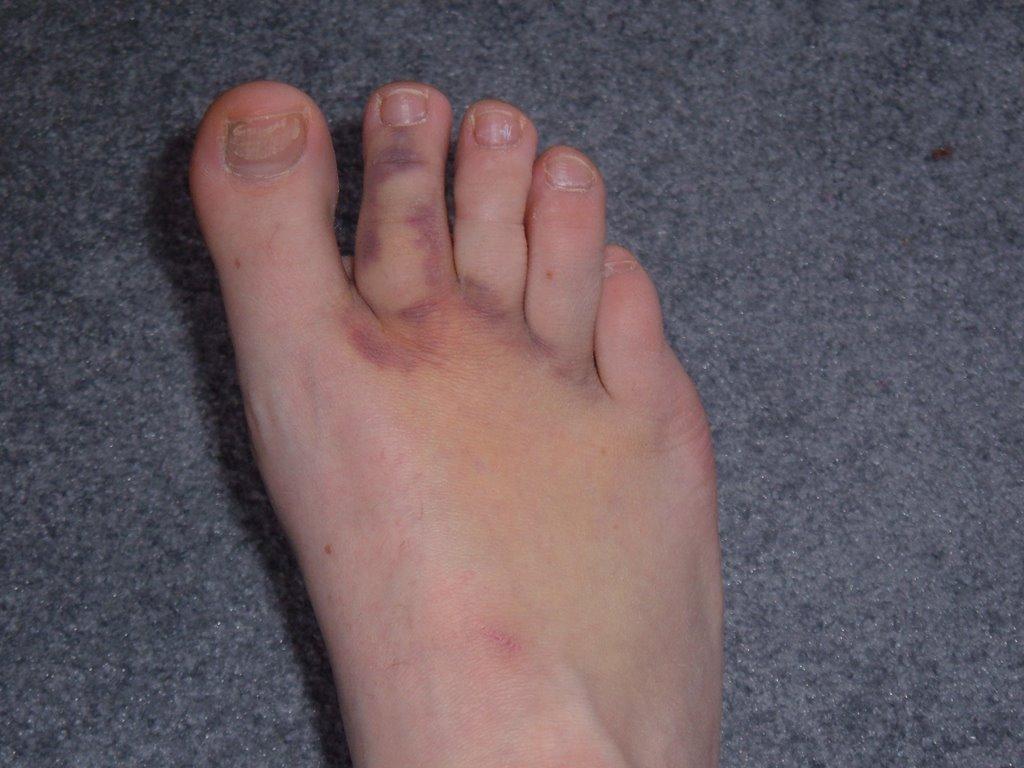 My Shoe Hurt The Big Toe Will My Toe Heal