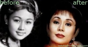 Retoke of the Week: Vilma Santos - Filipino Celebrity Plastic