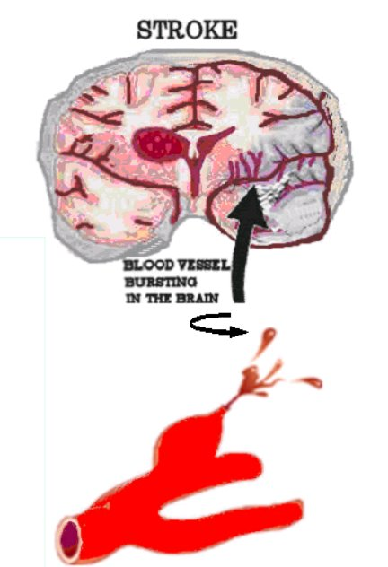 Quot Siswanto S Blog Quot Quot Cerebral Vascular Accident Disease