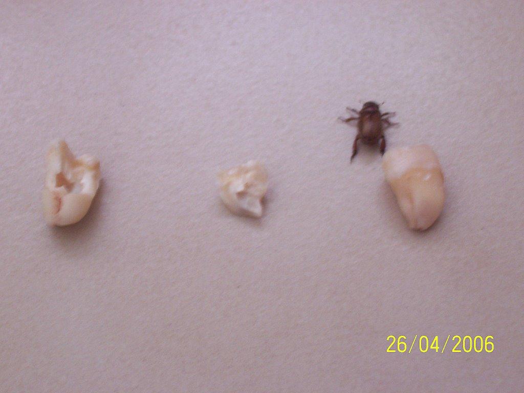 Wisdom Teeth Blood Clot Fell Out Teethwalls