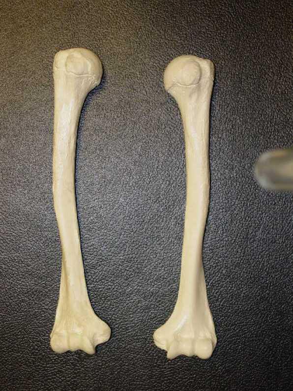 Humerus Anterior